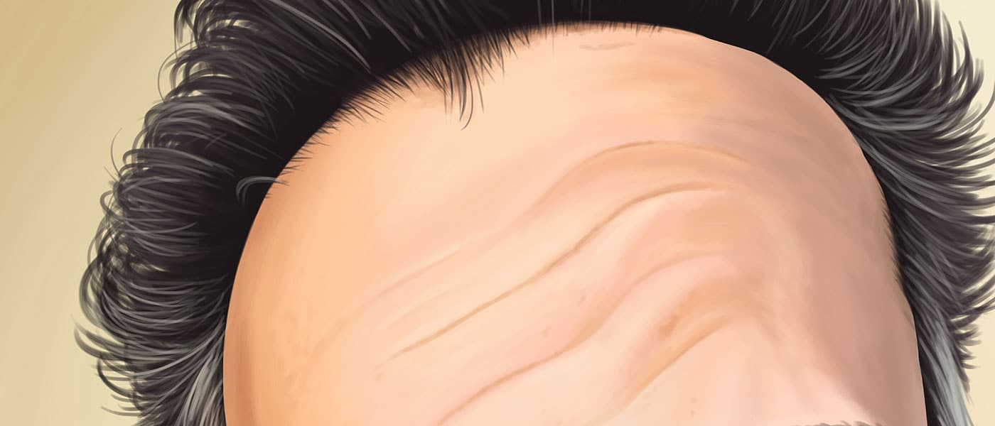 Forehead Detail